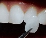 dental veneers Antibes