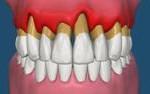trattamenti-odontoiatrici-parodontologia-3